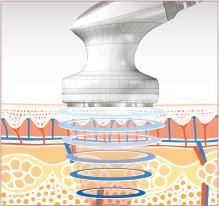キャビテーション皮下脂肪層